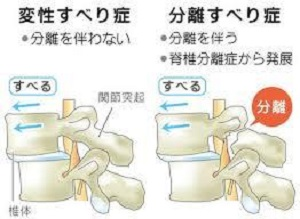 脊椎分離症症