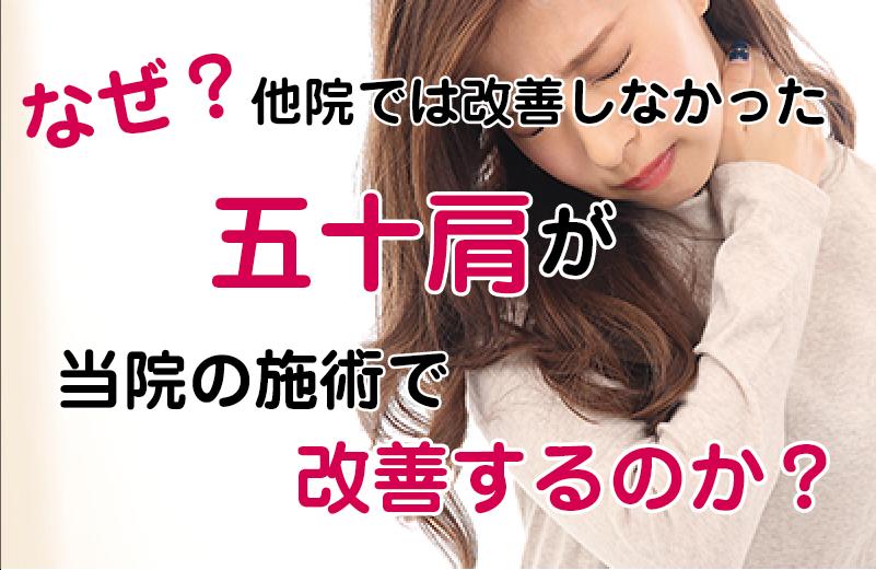 松江市の五十肩専門店