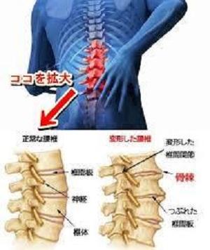 変形性脊椎症