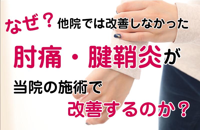 松江市のひじ痛専門店