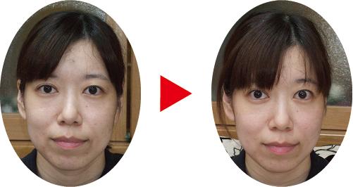 松江市の小顔矯正結果2